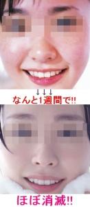 Baidu IME_2015-12-2_12-17-33