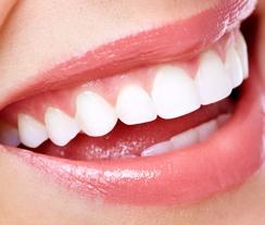 白い歯は無条件でモテる★簡単ホワイトニング方法